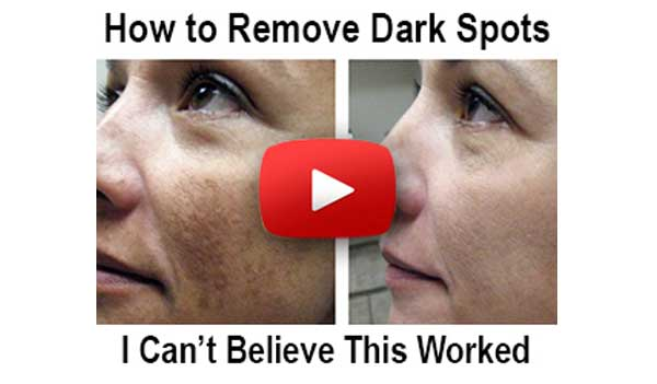 Beverly Hills MD Dark Spot Remover (US)