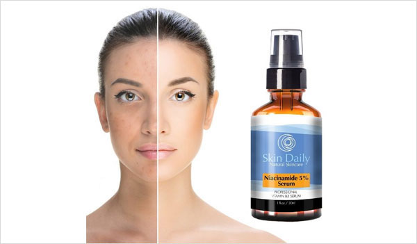 Niacinamide Vitamin B3 Serum By Skin Daily Skincare (56% Off)