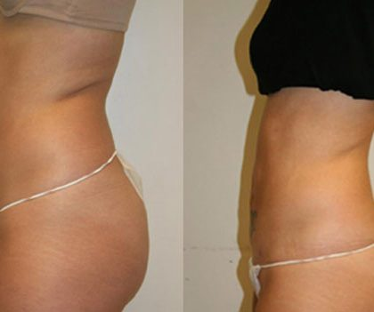 Secret Liposuction Alternative – Free Instant Access (US)