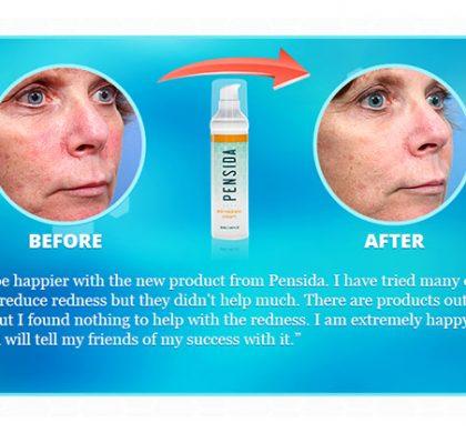 Pensida Anti-Redness Cream (US Only)