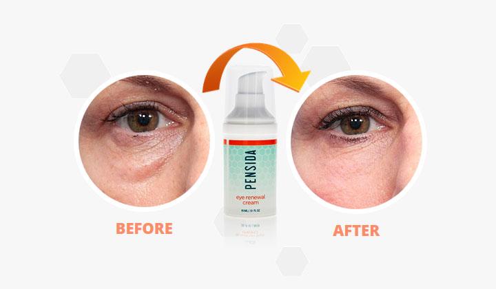 Pensida Eye Renewal Cream (US Only)