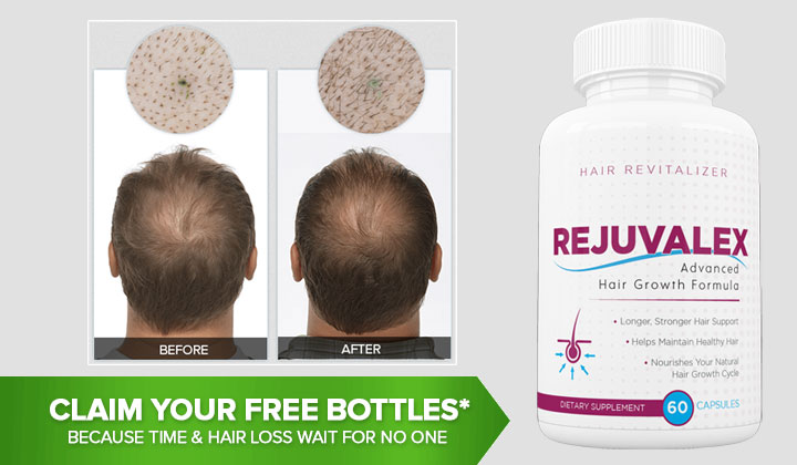 Rejuvalex Hair Growth Formula – Get Your Free Bottles