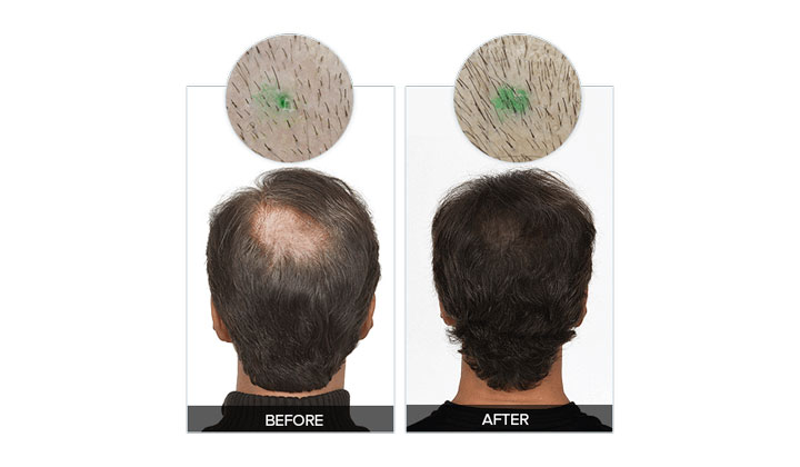 Rejuvalex Hair Growth Formula (US, UK, AU, NZ & CA Only)