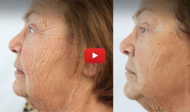 PrimaLift Skin Trial: Younger Looking Skin in Minutes