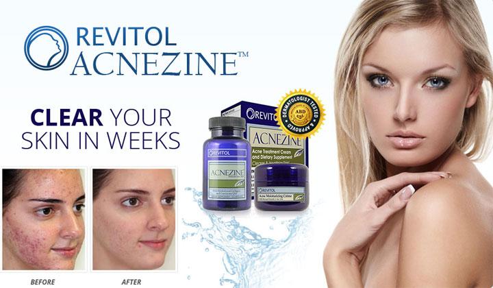 Acnezine Acne Cleanser: Eliminate spots, pimples, redness, pus, blackheads & whiteheads