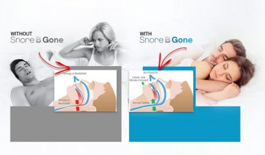 Snore B Gone – Anti Snoring